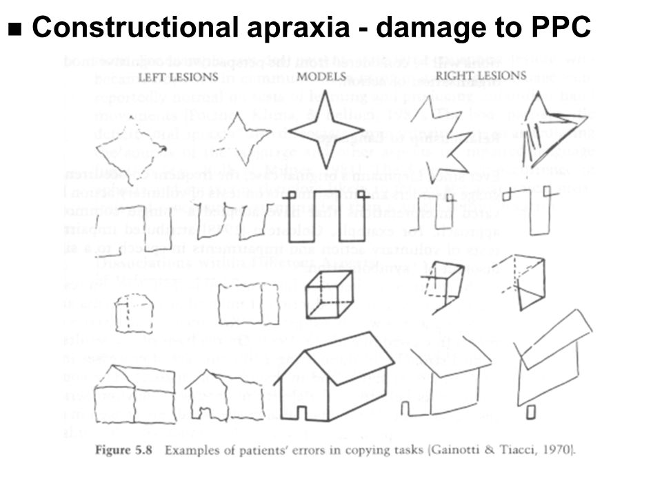n Constructional apraxia - damage to PPC