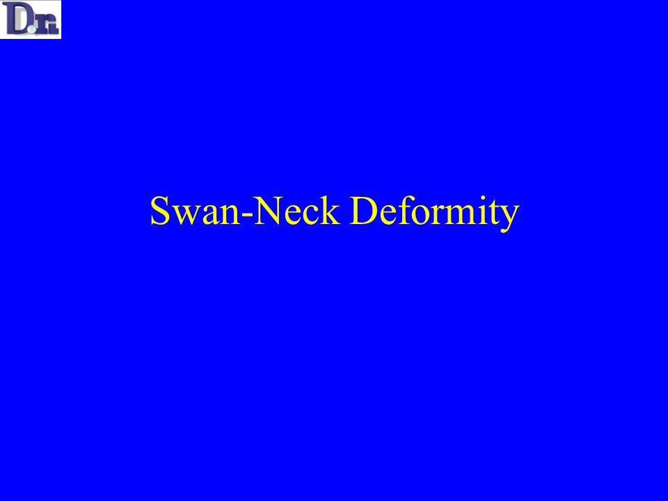 Swan-Neck Deformity