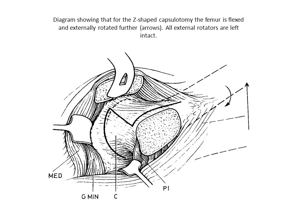 Diagram showing that for subluxation and dislocation of the femoral head the hip is flexed, externally rotated and the leg brought over the front of the operating table and placed in a sterile bag
