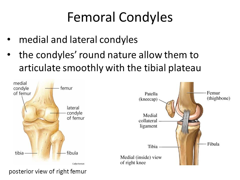 Femoral Condyles medial and lateral condyles the condyles' round nature allow them to articulate smoothly with the tibial plateau posterior view of ri