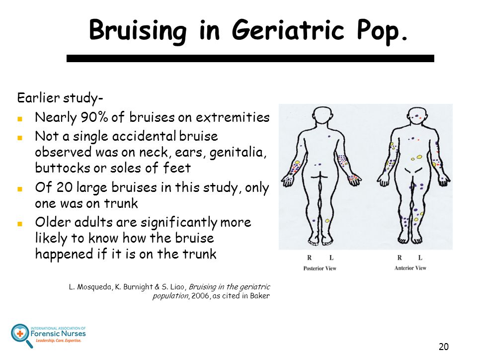 Bruising in Geriatric Pop. Earlier study- Nearly 90% of bruises on extremities Not a single accidental bruise observed was on neck, ears, genitalia, b