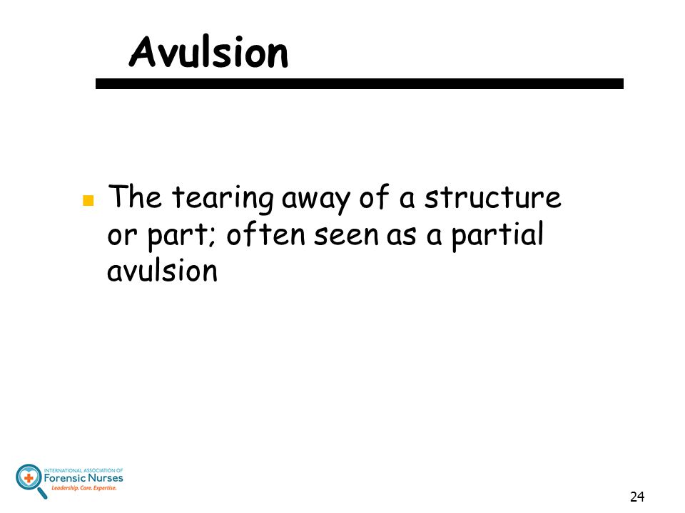 Avulsion The tearing away of a structure or part; often seen as a partial avulsion 24