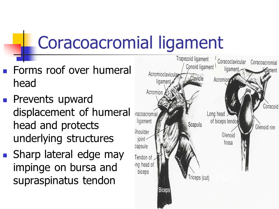 Coracoacromial ligament Forms roof over humeral head Prevents upward displacement of humeral head and protects underlying structures Sharp lateral edg