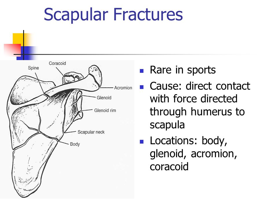 Scapular Fractures Rare in sports Cause: direct contact with force directed through humerus to scapula Locations: body, glenoid, acromion, coracoid