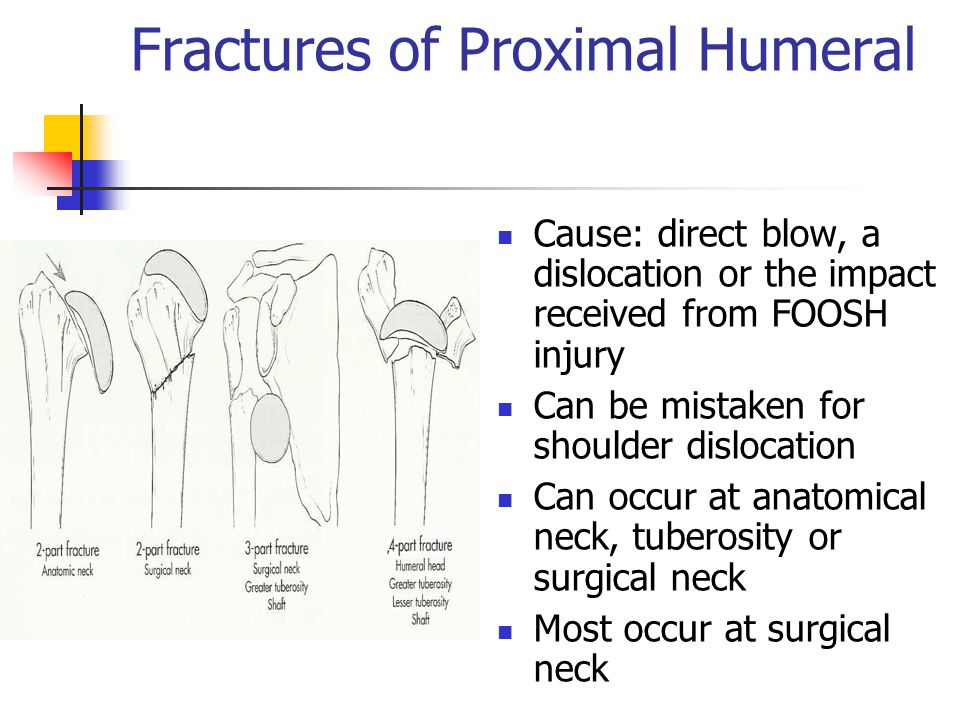 Fractures of Proximal Humeral Cause: direct blow, a dislocation or the impact received from FOOSH injury Can be mistaken for shoulder dislocation Can