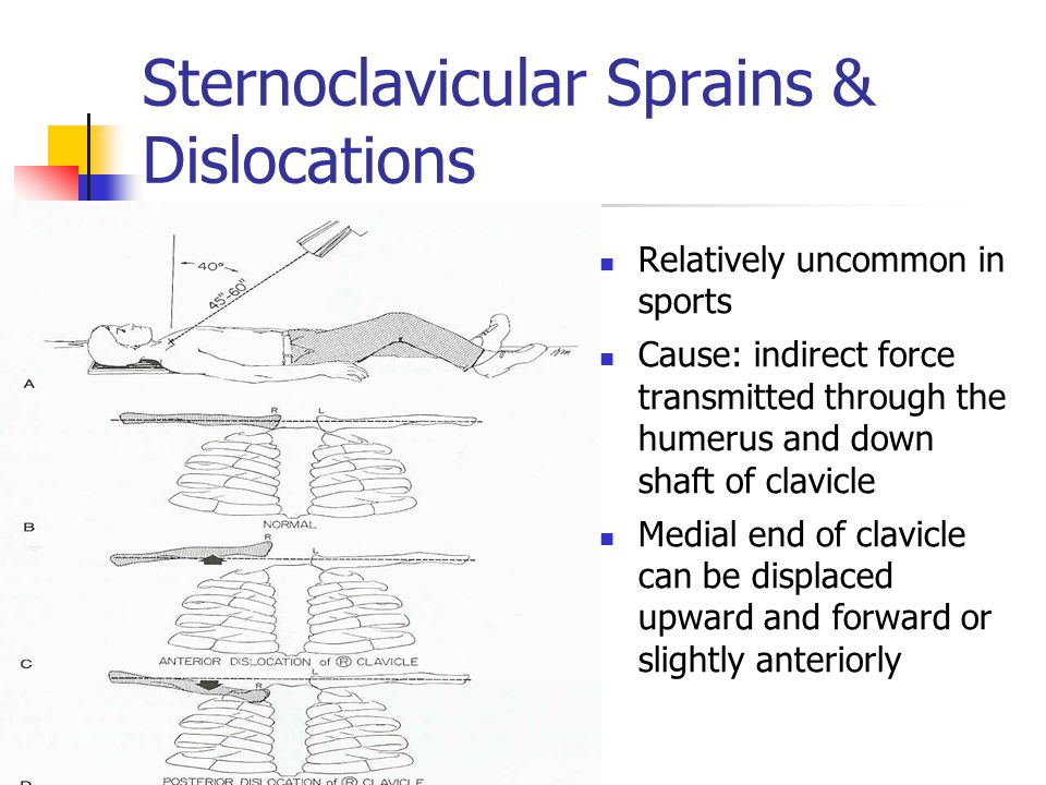 Sternoclavicular Sprains & Dislocations Relatively uncommon in sports Cause: indirect force transmitted through the humerus and down shaft of clavicle