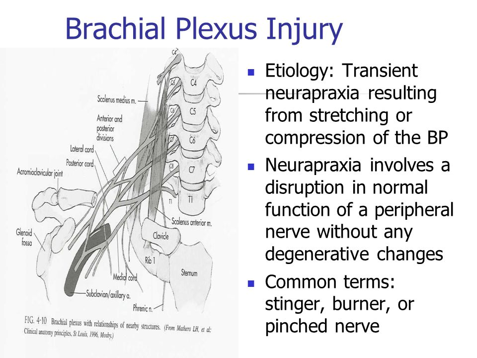 Brachial Plexus Injury Etiology: Transient neurapraxia resulting from stretching or compression of the BP Neurapraxia involves a disruption in normal