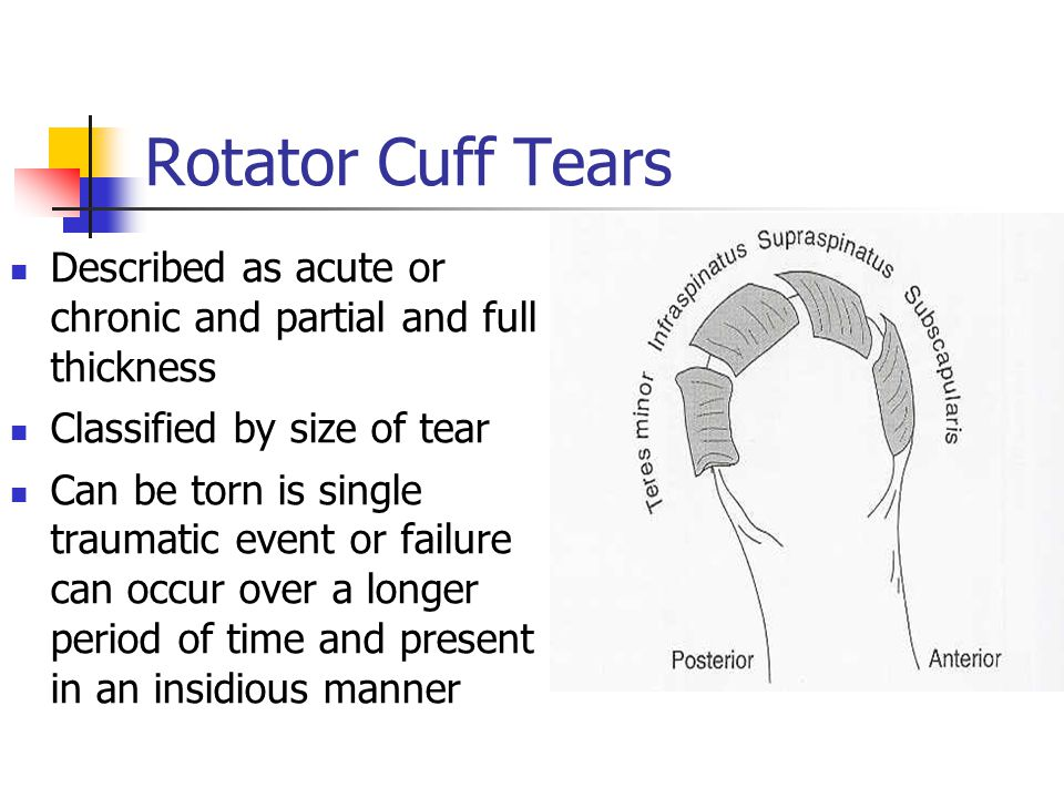 Rotator Cuff Tears Described as acute or chronic and partial and full thickness Classified by size of tear Can be torn is single traumatic event or fa