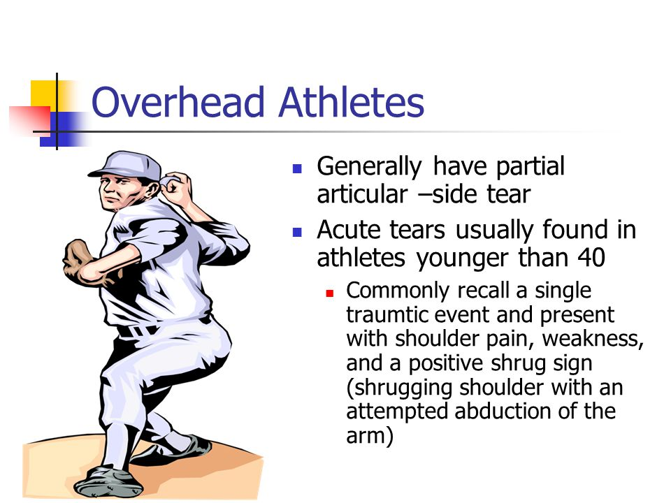 Overhead Athletes Generally have partial articular –side tear Acute tears usually found in athletes younger than 40 Commonly recall a single traumtic