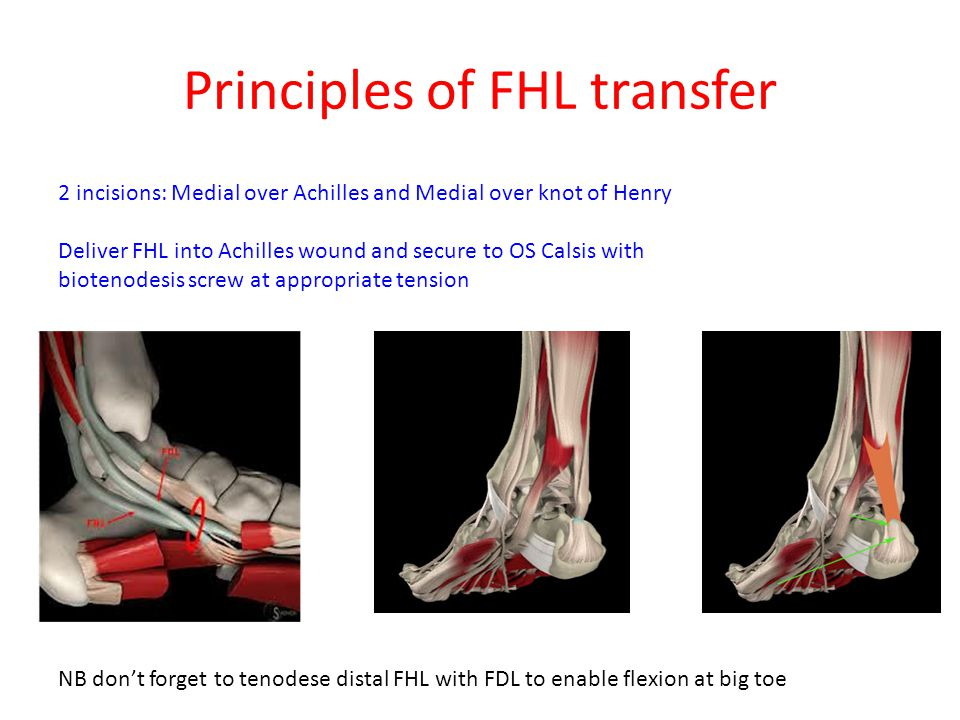 Principles of FHL transfer 2 incisions: Medial over Achilles and Medial over knot of Henry Deliver FHL into Achilles wound and secure to OS Calsis with biotenodesis screw at appropriate tension NB don't forget to tenodese distal FHL with FDL to enable flexion at big toe