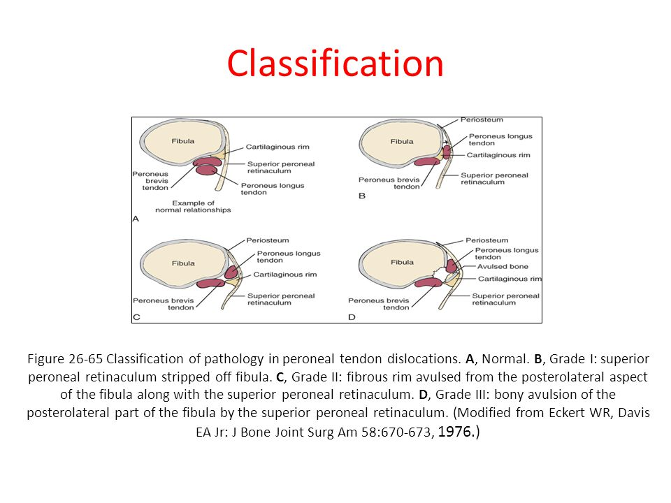 Classification Figure 26-65 Classification of pathology in peroneal tendon dislocations.