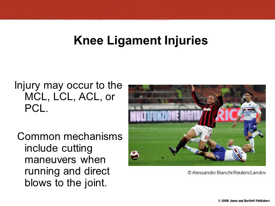 Knee Ligament Injuries Injury may occur to the MCL, LCL, ACL, or PCL.