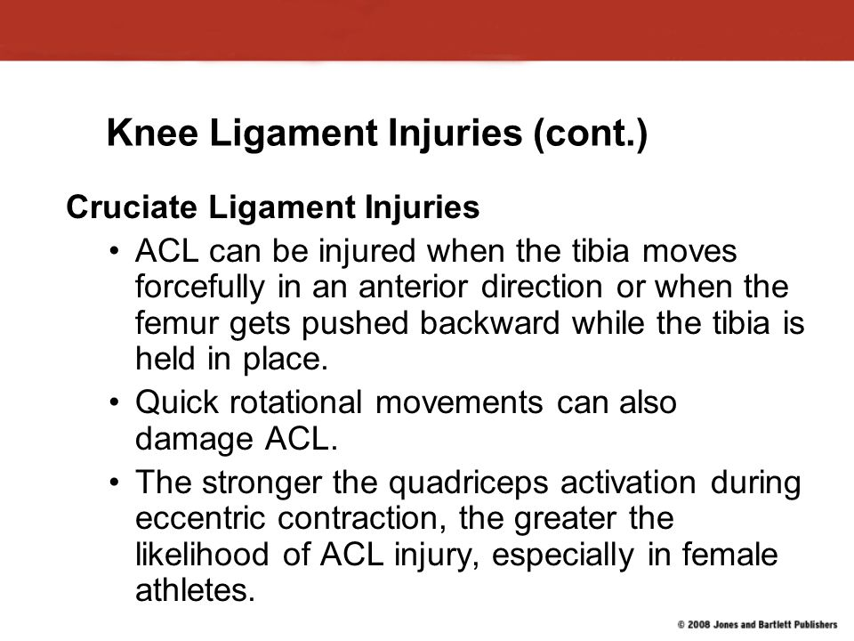 Knee Ligament Injuries (cont.) Cruciate Ligament Injuries ACL can be injured when the tibia moves forcefully in an anterior direction or when the femur gets pushed backward while the tibia is held in place.
