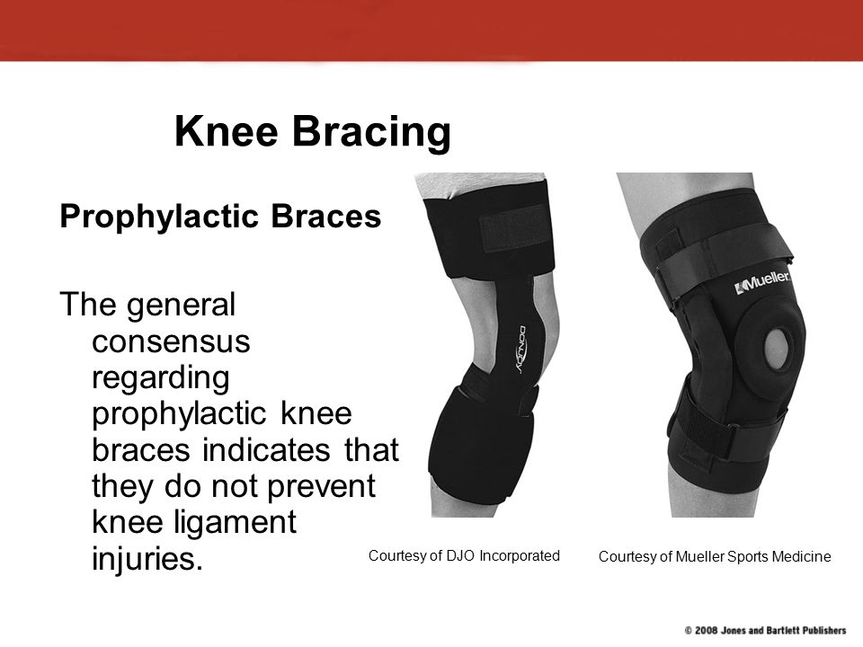 Knee Bracing Prophylactic Braces The general consensus regarding prophylactic knee braces indicates that they do not prevent knee ligament injuries.