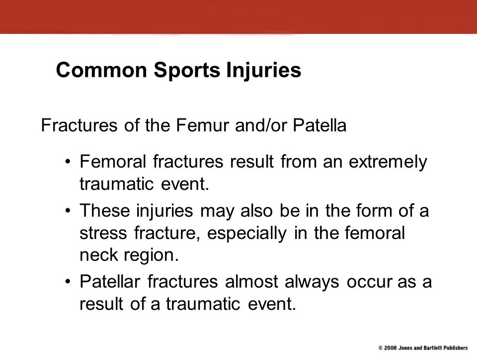 Common Sports Injuries Fractures of the Femur and/or Patella Femoral fractures result from an extremely traumatic event.