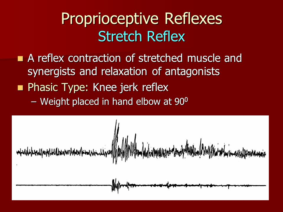 Proprioceptive Reflexes Stretch Reflex A reflex contraction of stretched muscle and synergists and relaxation of antagonists A reflex contraction of stretched muscle and synergists and relaxation of antagonists Phasic Type: Knee jerk reflex Phasic Type: Knee jerk reflex –Weight placed in hand elbow at 90 0