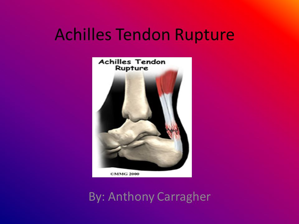 What is the Achilles tendon.