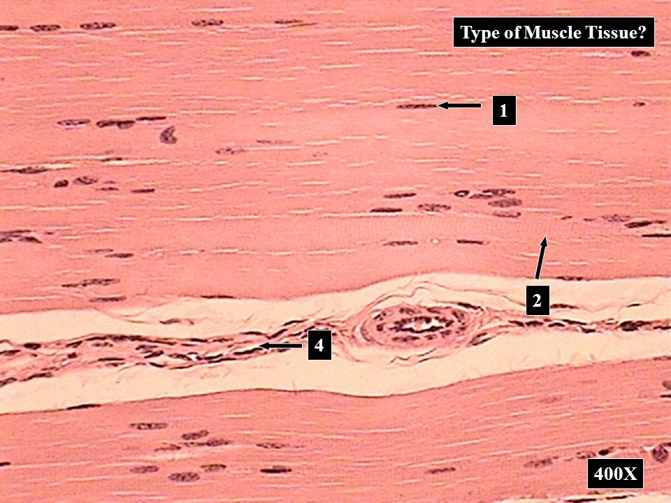 Type of Muscle Tissue? 400X 2 1 4