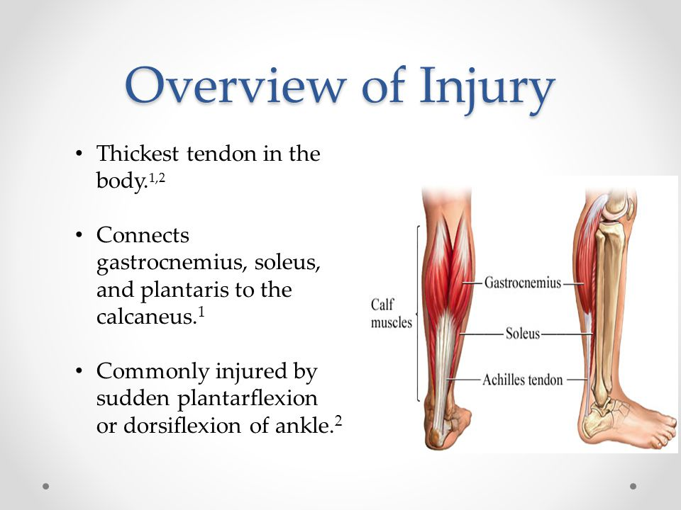 Overview of Injury Thickest tendon in the body. 1,2 Connects gastrocnemius, soleus, and plantaris to the calcaneus. 1 Commonly injured by sudden plant