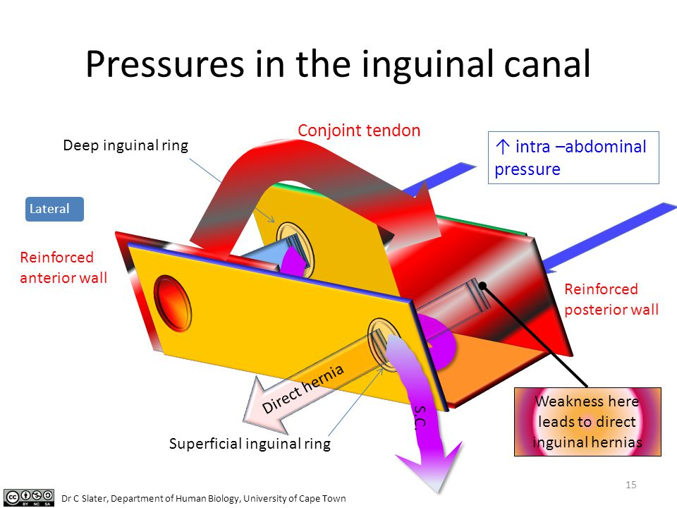 Pressures in the inguinal canal 15 Lateral Deep inguinal ring ↑ intra –abdominal pressure Superficial inguinal ring Conjoint tendon Reinforced anterio