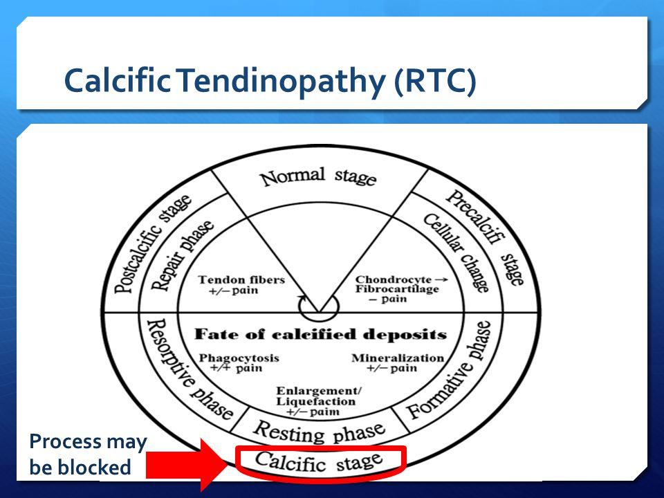 Calcific Tendinopathy (RTC) Process may be blocked
