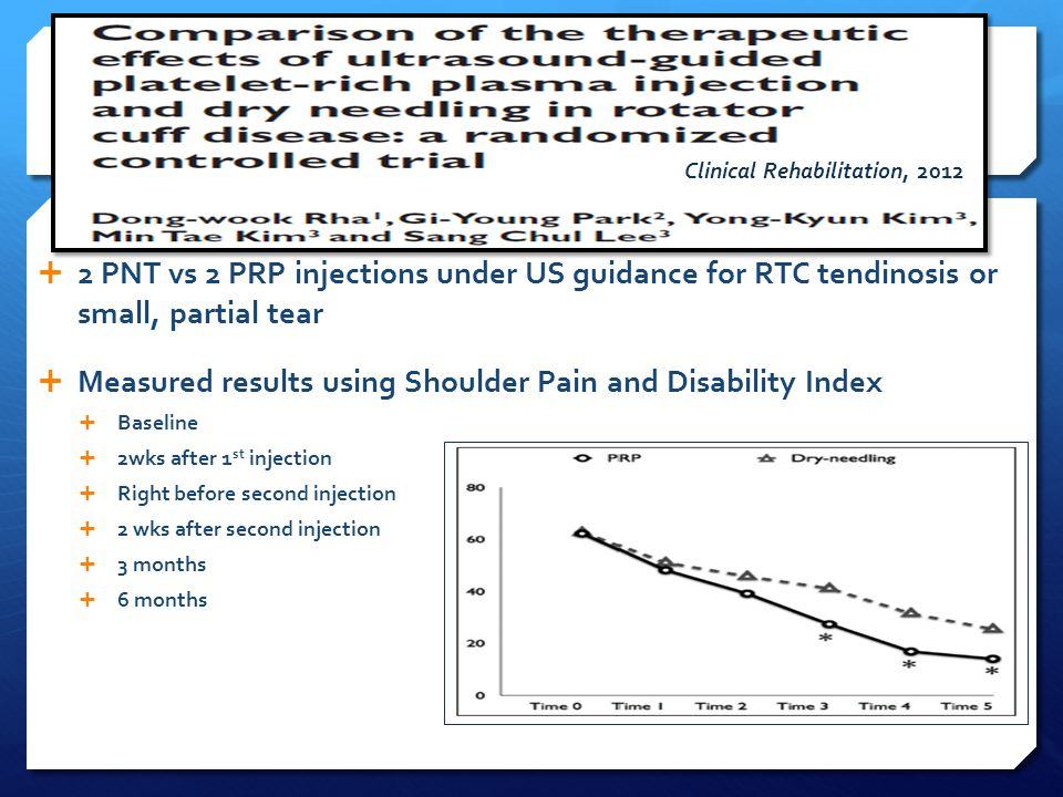  2 PNT vs 2 PRP injections under US guidance for RTC tendinosis or small, partial tear  Measured results using Shoulder Pain and Disability Index 