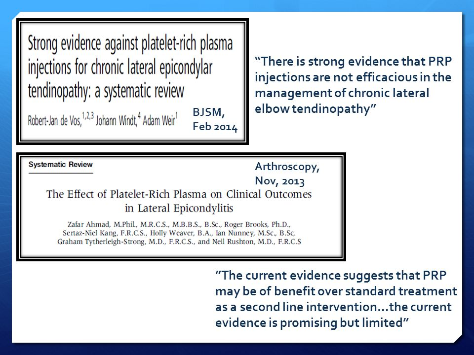 """""""There is strong evidence that PRP injections are not efficacious in the management of chronic lateral elbow tendinopathy"""" """"The current evidence sugge"""
