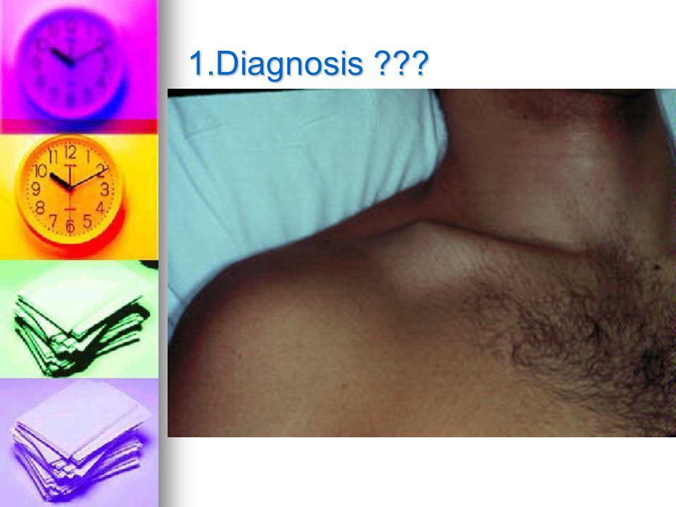 1.Diagnosis ???