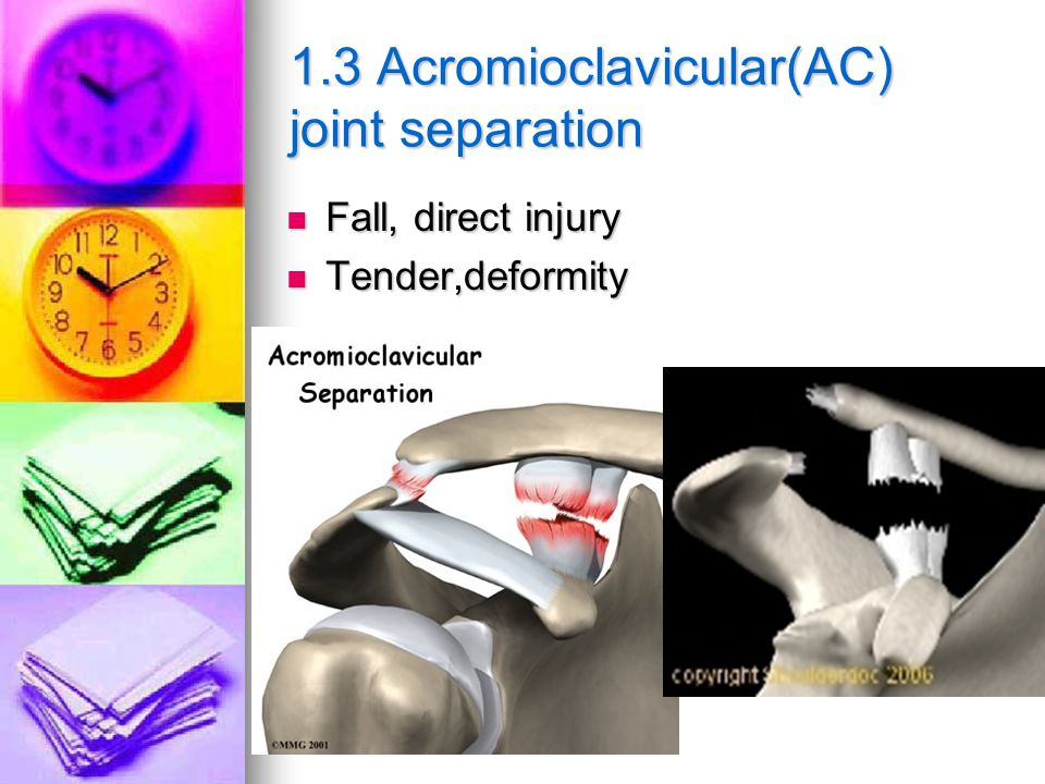 1.3 Acromioclavicular(AC) joint separation Fall, direct injury Fall, direct injury Tender,deformity Tender,deformity