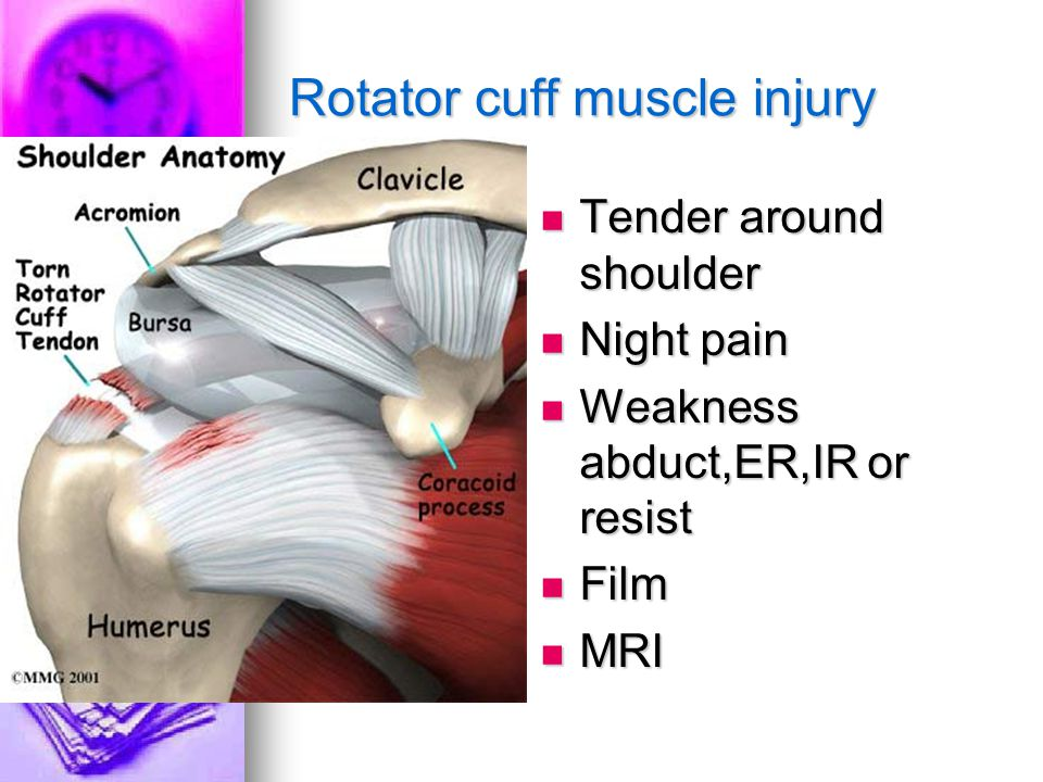Rotator cuff muscle injury Tender around shoulder Tender around shoulder Night pain Night pain Weakness abduct,ER,IR or resist Weakness abduct,ER,IR or resist Film Film MRI MRI