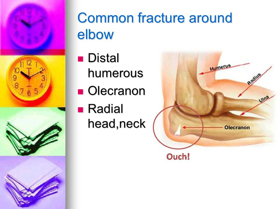 Common fracture around elbow Distal humerous Distal humerous Olecranon Olecranon Radial head,neck Radial head,neck