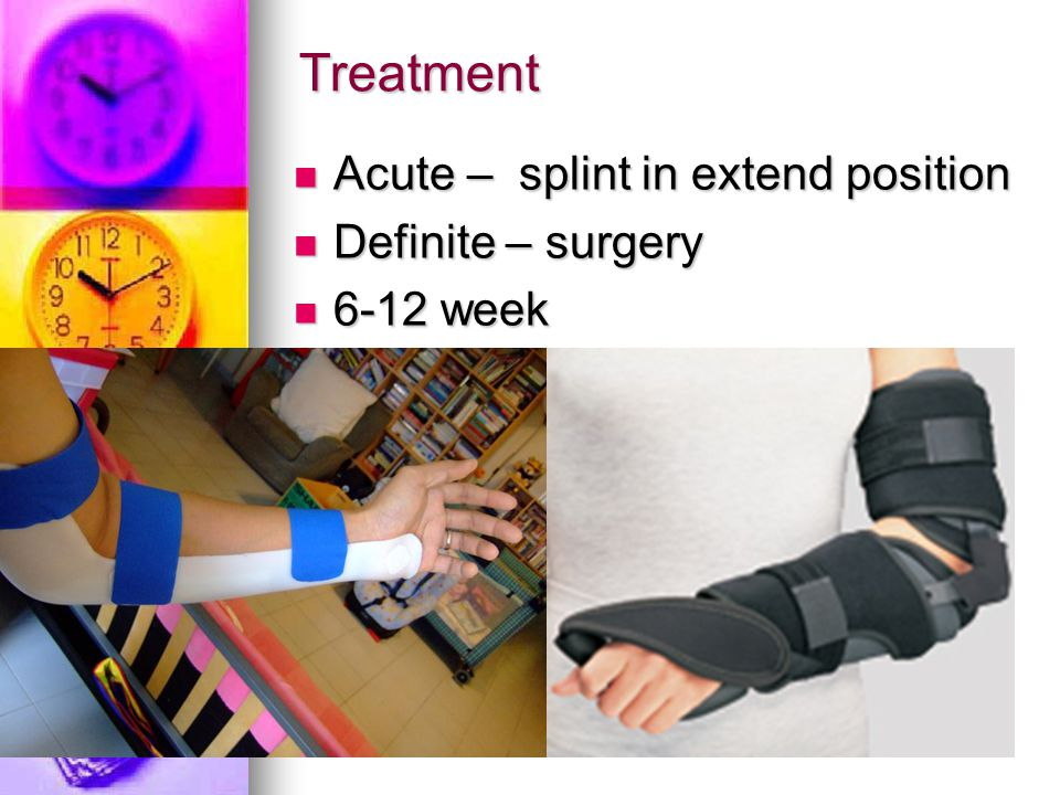 Treatment Acute – splint in extend position Acute – splint in extend position Definite – surgery Definite – surgery 6-12 week 6-12 week