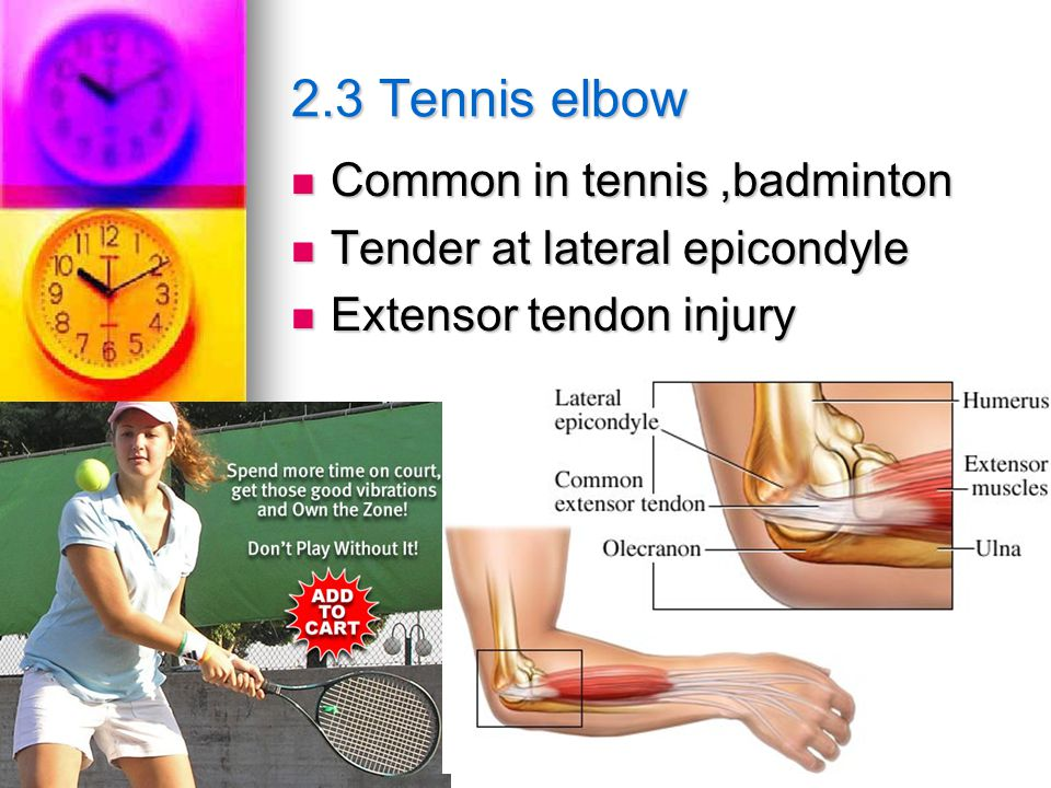 2.3 Tennis elbow Common in tennis,badminton Common in tennis,badminton Tender at lateral epicondyle Tender at lateral epicondyle Extensor tendon injury Extensor tendon injury