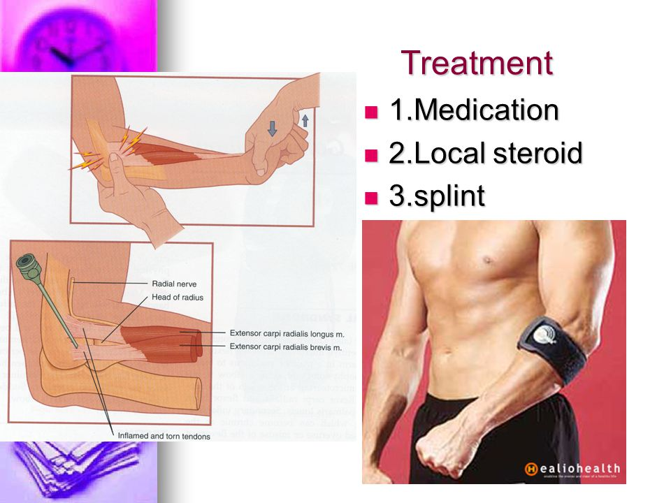 Treatment 1.Medication 1.Medication 2.Local steroid 2.Local steroid 3.splint 3.splint
