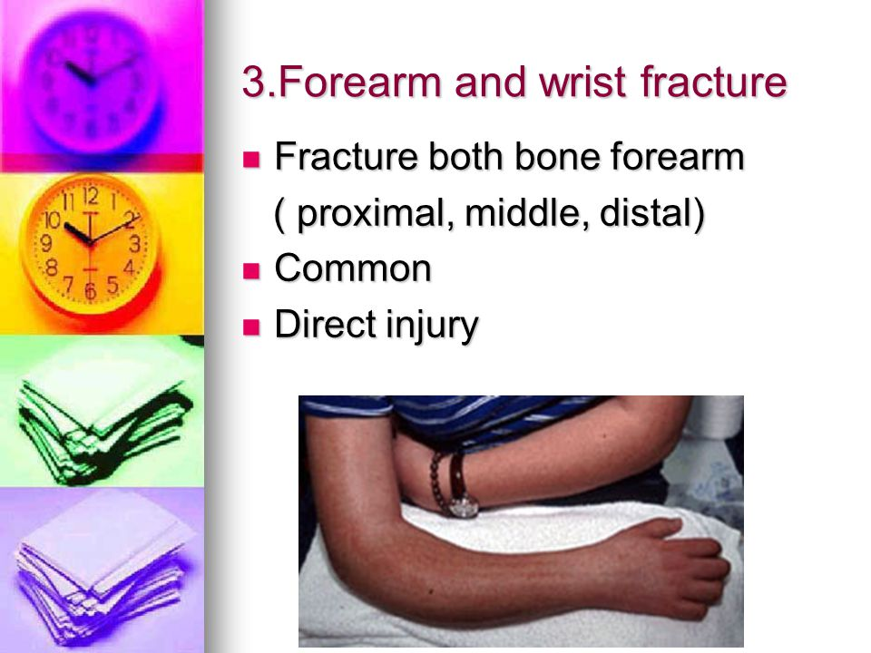 3.Forearm and wrist fracture Fracture both bone forearm Fracture both bone forearm ( proximal, middle, distal) ( proximal, middle, distal) Common Common Direct injury Direct injury
