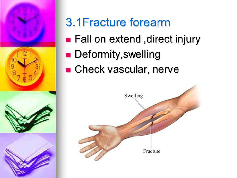 3.1Fracture forearm Fall on extend,direct injury Fall on extend,direct injury Deformity,swelling Deformity,swelling Check vascular, nerve Check vascular, nerve