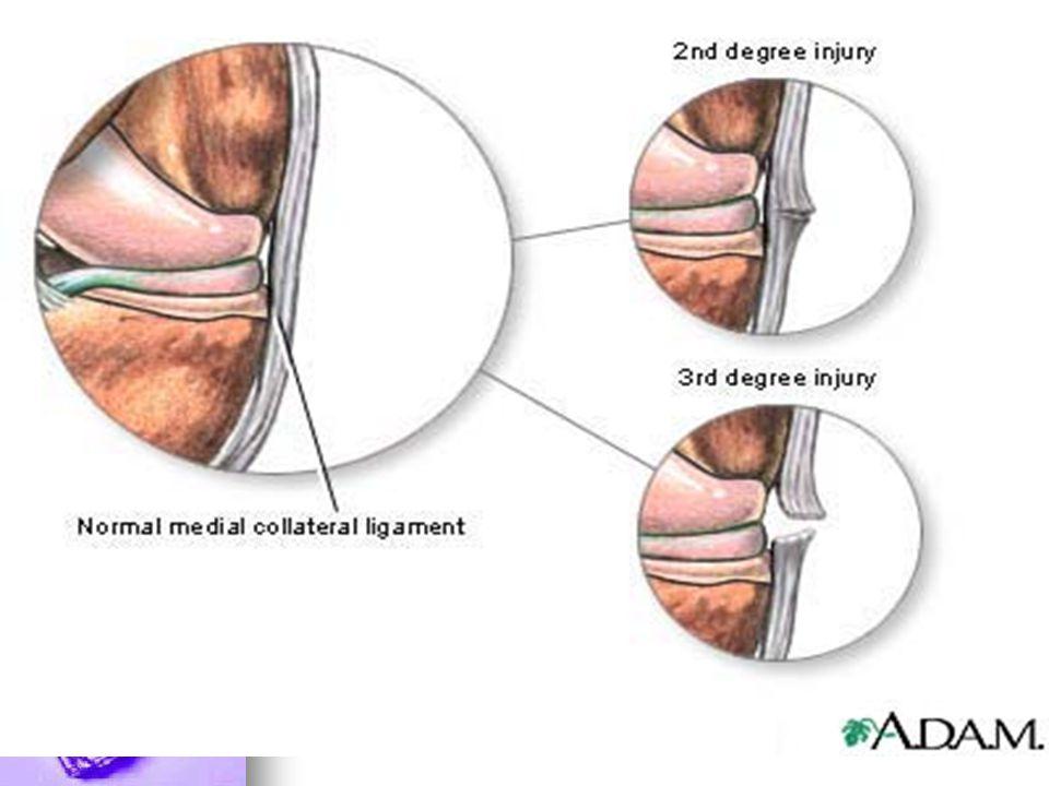 2.3 Surgery Grade 3 ( complete tear) Grade 3 ( complete tear) 1.Direct Repair 1.Direct Repair 2.Reconstruction 2.Reconstruction