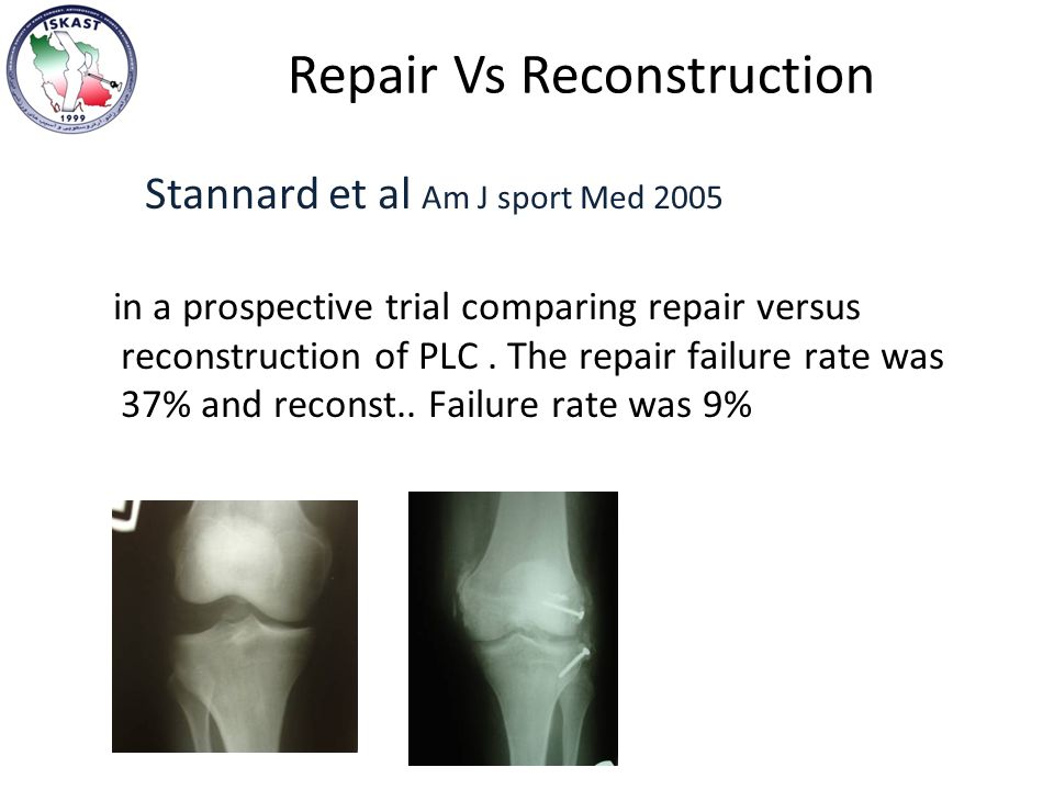 Repair Vs Reconstruction Stannard et al Am J sport Med 2005 in a prospective trial comparing repair versus reconstruction of PLC.