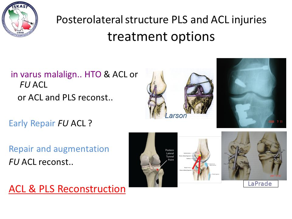 Posterolateral structure PLS and ACL injuries treatment options in varus malalign..