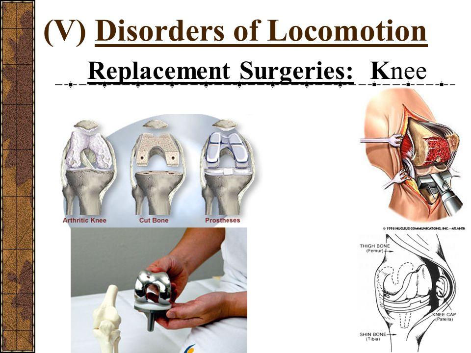 (V) Disorders of Locomotion Sprains:???? Strains:?????