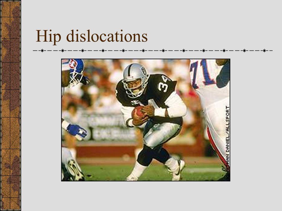 Replacement Surgeries: hip