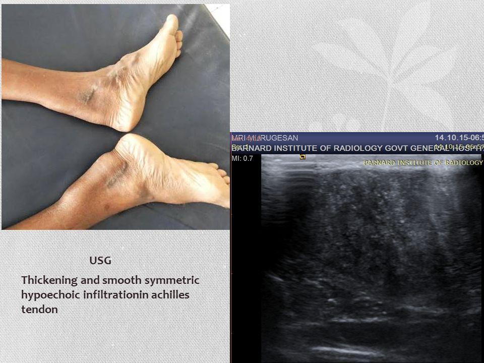 DIAGNOSIS CEREBRO TENDINOUS XANTHOMATOSIS (CTX)