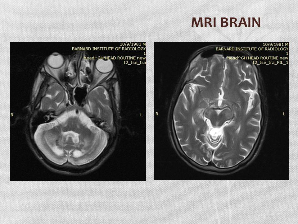 Bilateral symmetric T2, FLAIR Hyperintensities in thalamus, cerebral peduncle, periventricular white matter, cerebellar white matter and dentate nucleus
