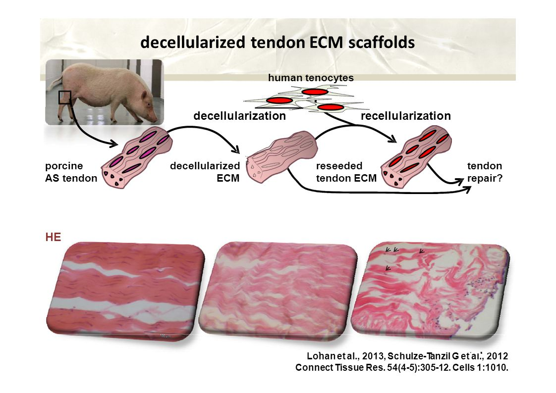 decellularized tendon ECM scaffolds human tenocytes decellularization recellularization porcine AS tendon reseeded tendon ECM tendon repair.