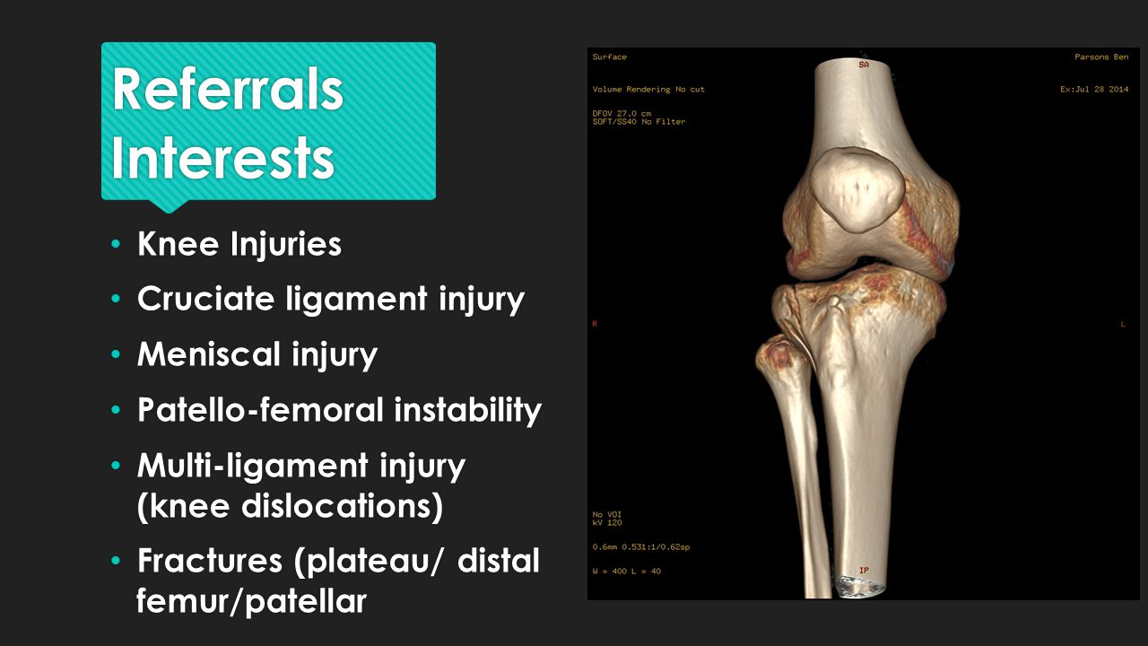 Referrals Interests Knee Injuries Cruciate ligament injury Meniscal injury Patello-femoral instability Multi-ligament injury (knee dislocations) Fractures (plateau/ distal femur/patellar