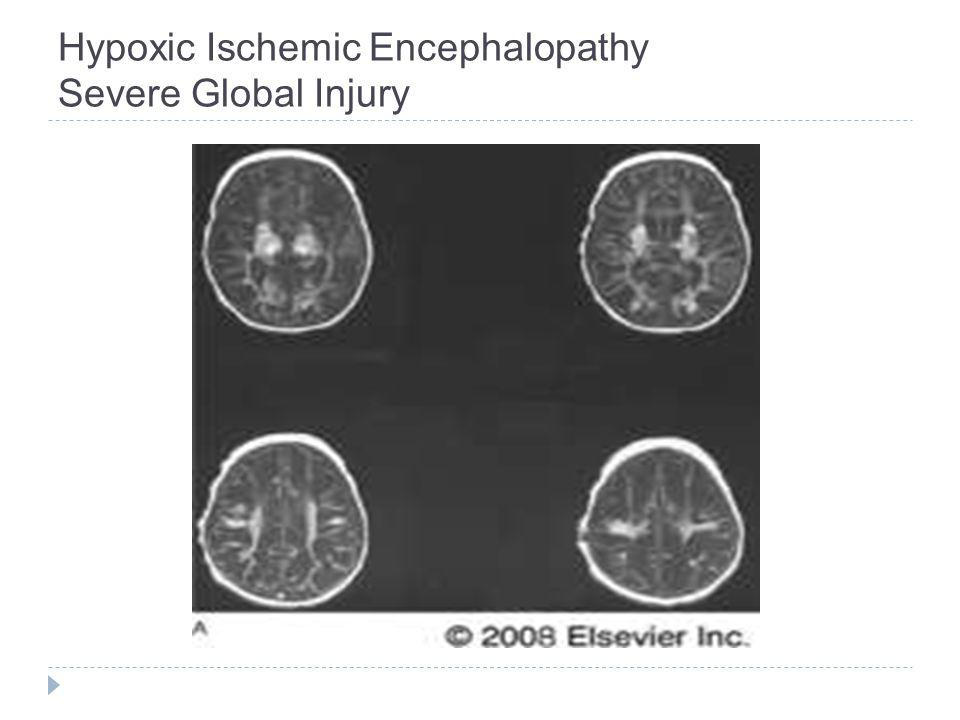 Hypoxic Ischemic Encephalopathy Severe Global Injury