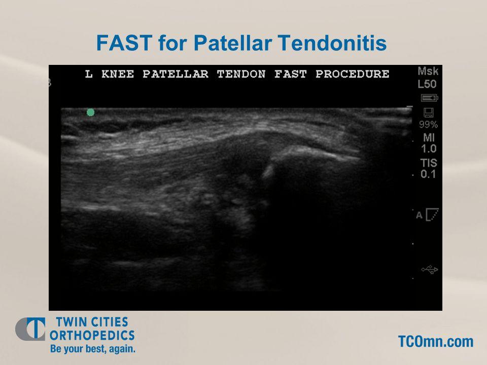 FAST for Patellar Tendonitis