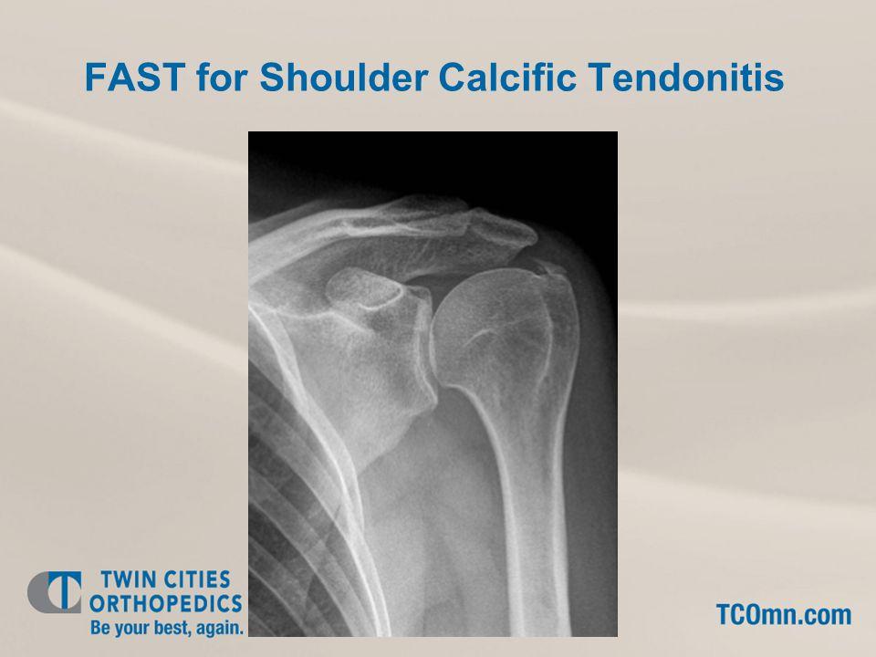 FAST for Shoulder Calcific Tendonitis