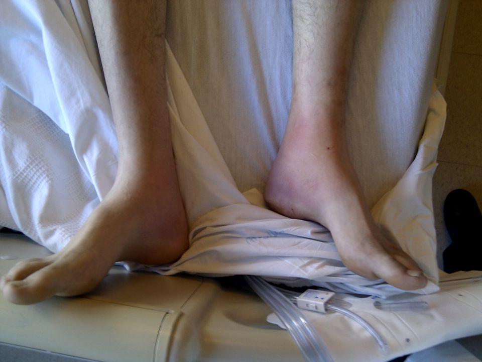 Lofgren's Syndrome Bilateral hilar lymphadenopathy Fever Erythema nodosum +/- ankle arthritis or periarticular inflammation