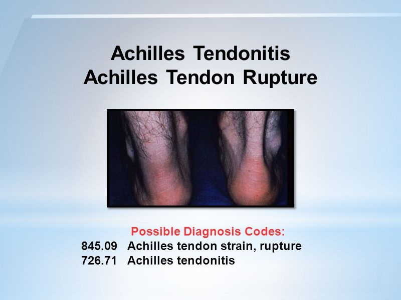 Achilles Tendonitis Achilles Tendon Rupture Possible Diagnosis Codes: 845.09 Achilles tendon strain, rupture 726.71 Achilles tendonitis